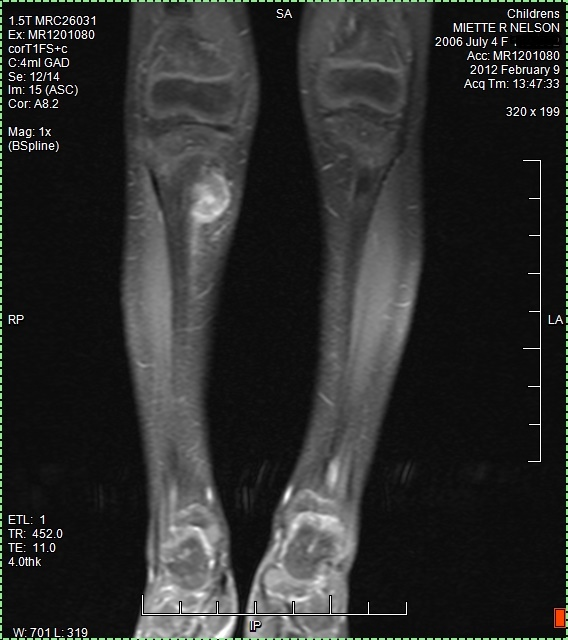 Ewings Sarcoma tumor on MRI